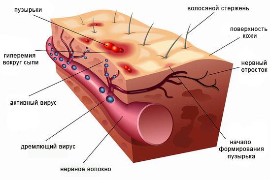 Вирус зостер