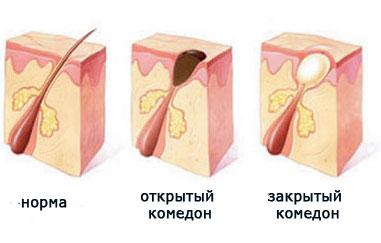Угревая болезнь причины