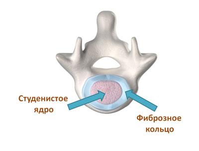 межпозвонковый диск