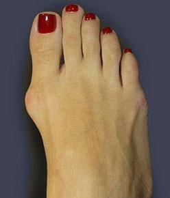шишка большого пальца