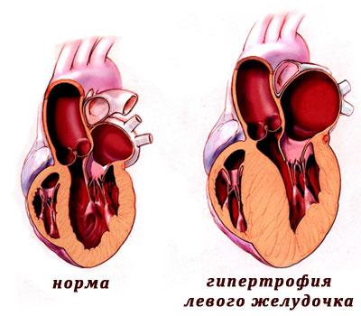 bessonnitsa-simptom-kakoy-bolezni