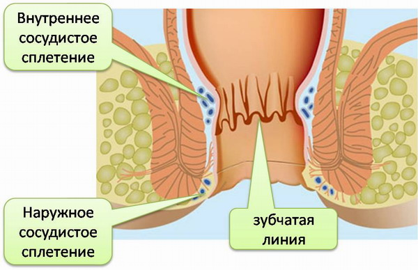 геморроидальные шишки