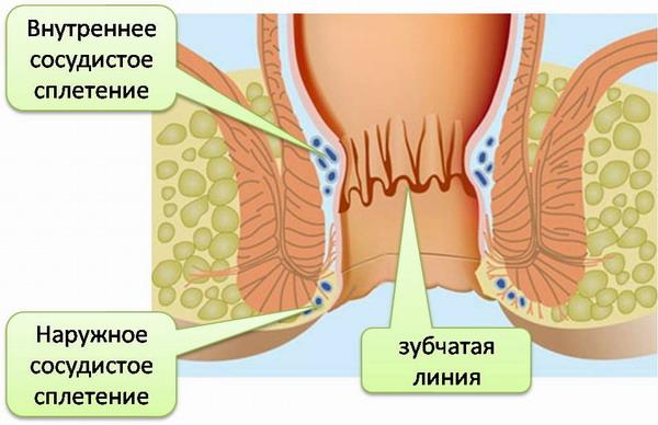 геморройные шишки