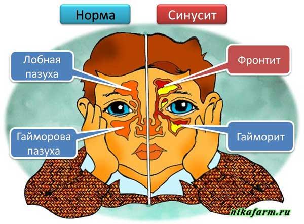 Гайморит и фронтит