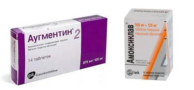 амоксициллин с клавулановой кислотой при гайморите