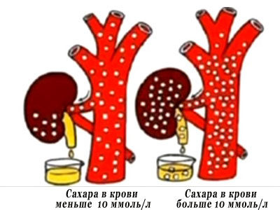 глюкоза в моче