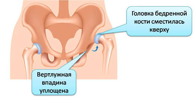 Дисплазия норма отведения суставов 22-30 аппарат роликовый для нагнетания растворов в сустав