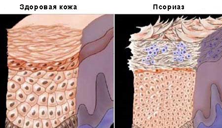 psoriaz-skolko-zhivut-s-psoriazom