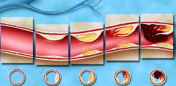 формирование холестериновой бляшки