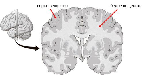 мозг на разрезе