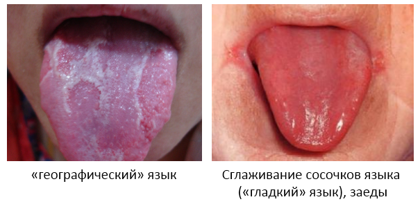 язык при анемии
